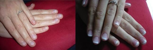 avant/après ongles